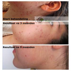 Acne-behandeling-voor-en-na-5-maanden