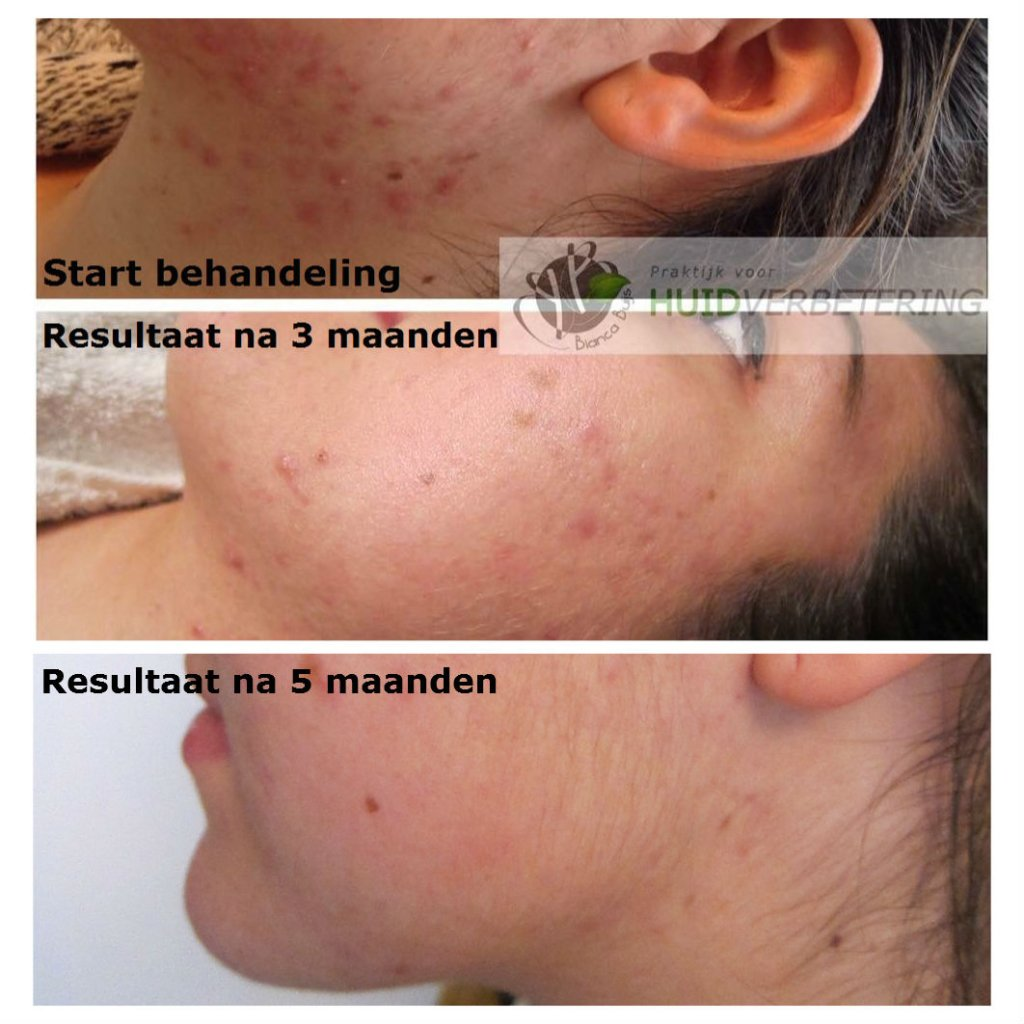 Acne behandeling voor en na 5 maanden