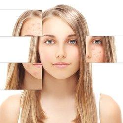 Acne huid verbeteren