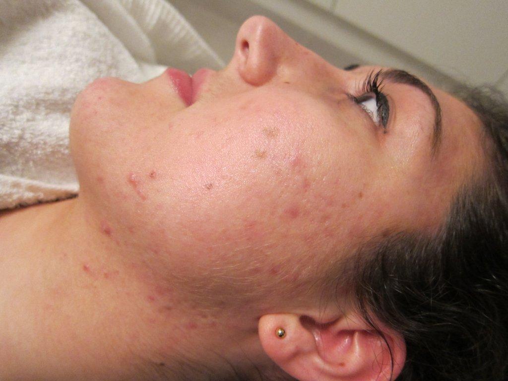 Acne in gezicht na 3 maanden acnetherapie