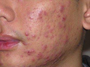 puistjes en acne uitbraken voorkomen en verminderen