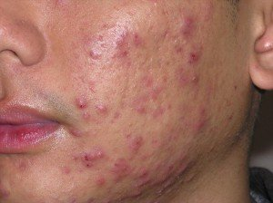 ontstoken acne