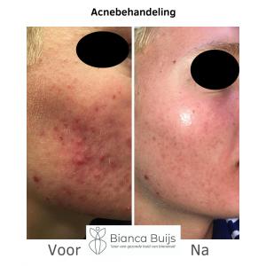 Acnebehandeling donkere huid voor en na foto