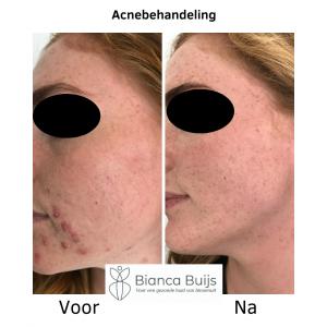Acnebehandeling voor en na foto BB-huidverbetering