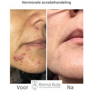 Behandeling hormonale acne voor en na foto