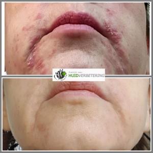 Clownseczeem dermatitis perioralis voor en na foto