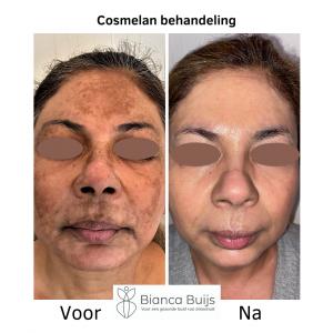 Cosmelan behandeling donkere huid voor en na foto