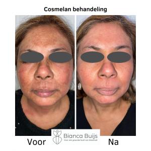 Cosmelan behandeling getinte huid voor en na foto