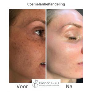 Cosmelan behandeling voor en na foto