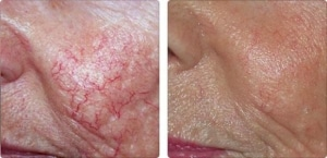Couperose roodheid voor en na behandeling met Tele'way