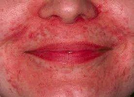 Dermatitis perioralis, Clownseczeem