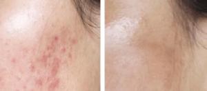 Dermapen Micro Needling voor en na foto acne littekens