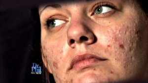 Dermatillomanie, Skin Picking dwangmatig krabben pulken aan huid