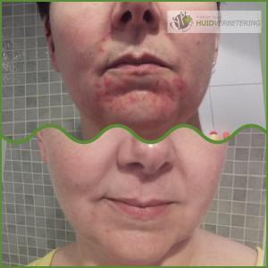 Dermatitis Perioralis, clownseczeem voor en na foto door gebruik van juiste natuurlijke producten