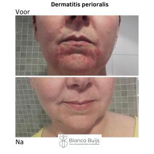 Dermatitis Perioralis voor en na foto