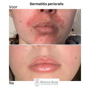 Dermatitis perioralis, clownseczeem natuurlijke behandeling voor en na foto