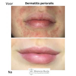Dermatitis perioralis, clownseczeem voor en na foto