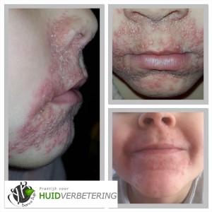 Dermatitis perioralis voor en na foto kind