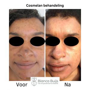 Donkere huid en huidproblemen