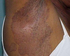 Donkere verkleuringen hyperpigmentatie pigmentvlekken oksels