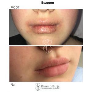 Eczeem lippen Voor en na foto