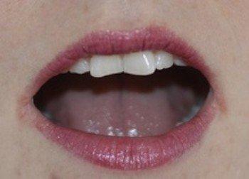 Gescheurde mondhoeken met kloofjes