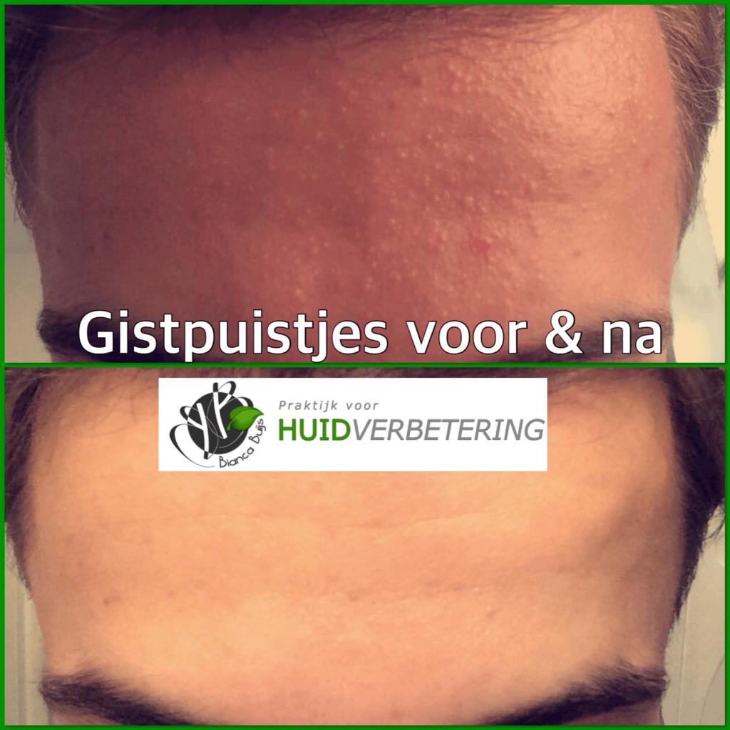 Gistpuistjes of Folliculitis is geen acne voor en na foto