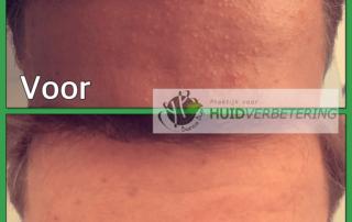 Gistpuistjes (pityrosporon folliculitis) in het gezicht ervaring van Loek