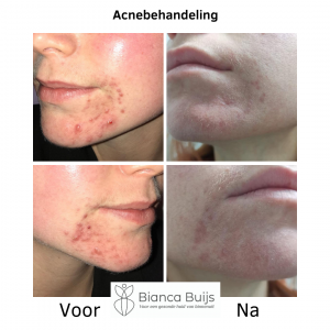 Hormonale acne kin voor en na foto BB-huidverbetering