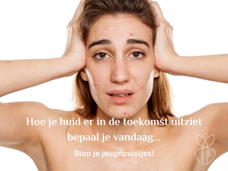 Jeugdpuistjes puberteit behandelen omgeving Haarlem of begeleiding op afstand