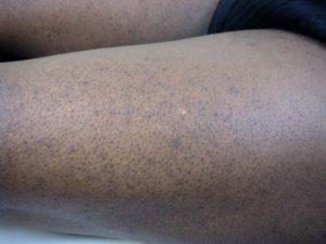 Keratosis Pilaris donkere huid