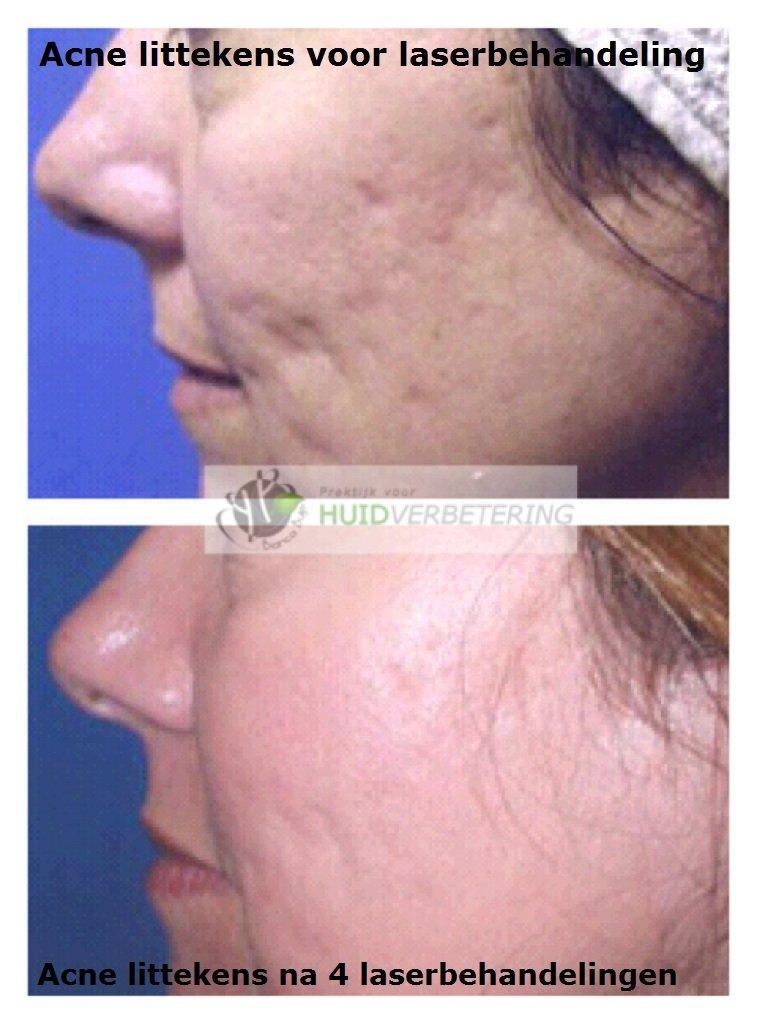 Laserbehandeling littekens gezicht vervagen en verminderen
