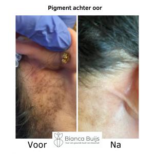 Pigmentvlekken achter oor voor en na foto