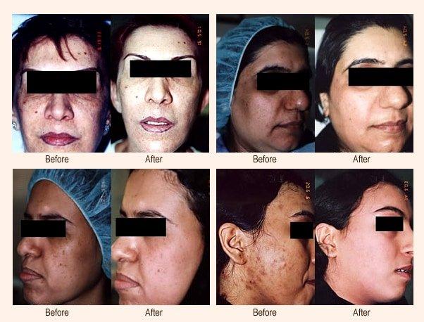 Pigmentvlekken bij donkere huid en getinte huid verwijderen met Cosmelan