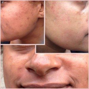Resultaat na 7 maanden: Pigmentvlekken donkere huid verwijderen