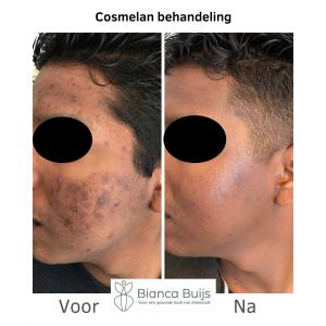 Pigmentvlekken donkere huid verwijderen