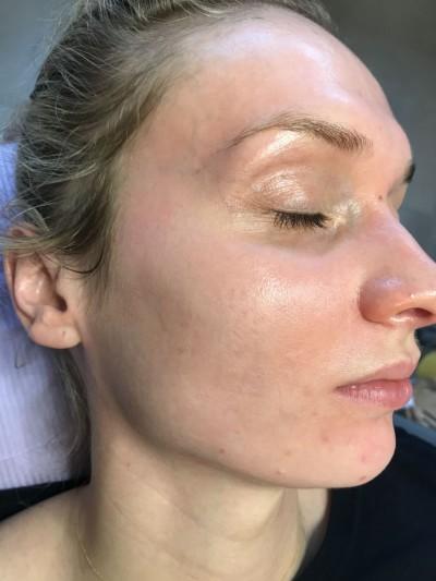 Pigmentvlekken en melasma verwijderen met Cosmelan behandeling