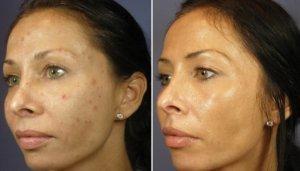 Pigmentvlekken verwijderen bij getinte huid