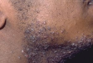 Pseudofolliculitis barbae of scheerbulten