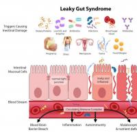Verhoogd doorlaatbare darmbarrière en obstipatie oorzaak van acne en andere huidproblemen