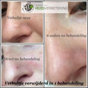 Vetbultje op neus verwijderd in 1 behandeling voor en na foto