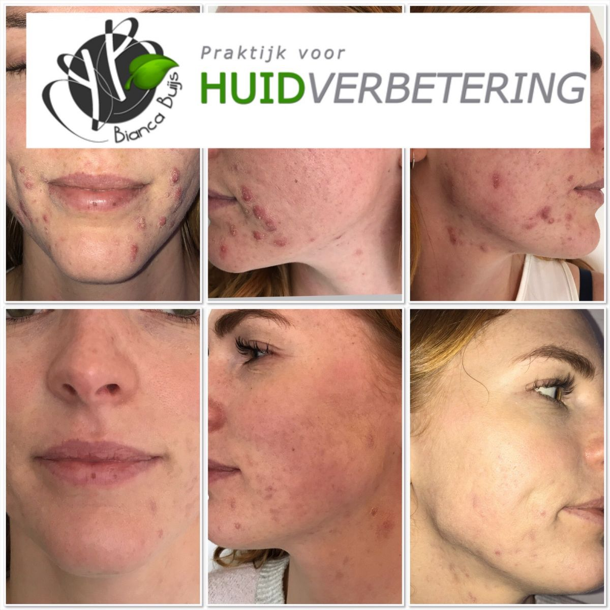 Voor en na foto acne