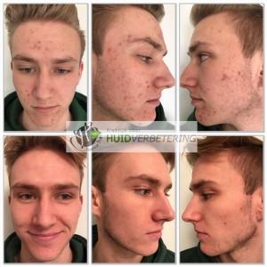 Acne behandeling voor en na foto