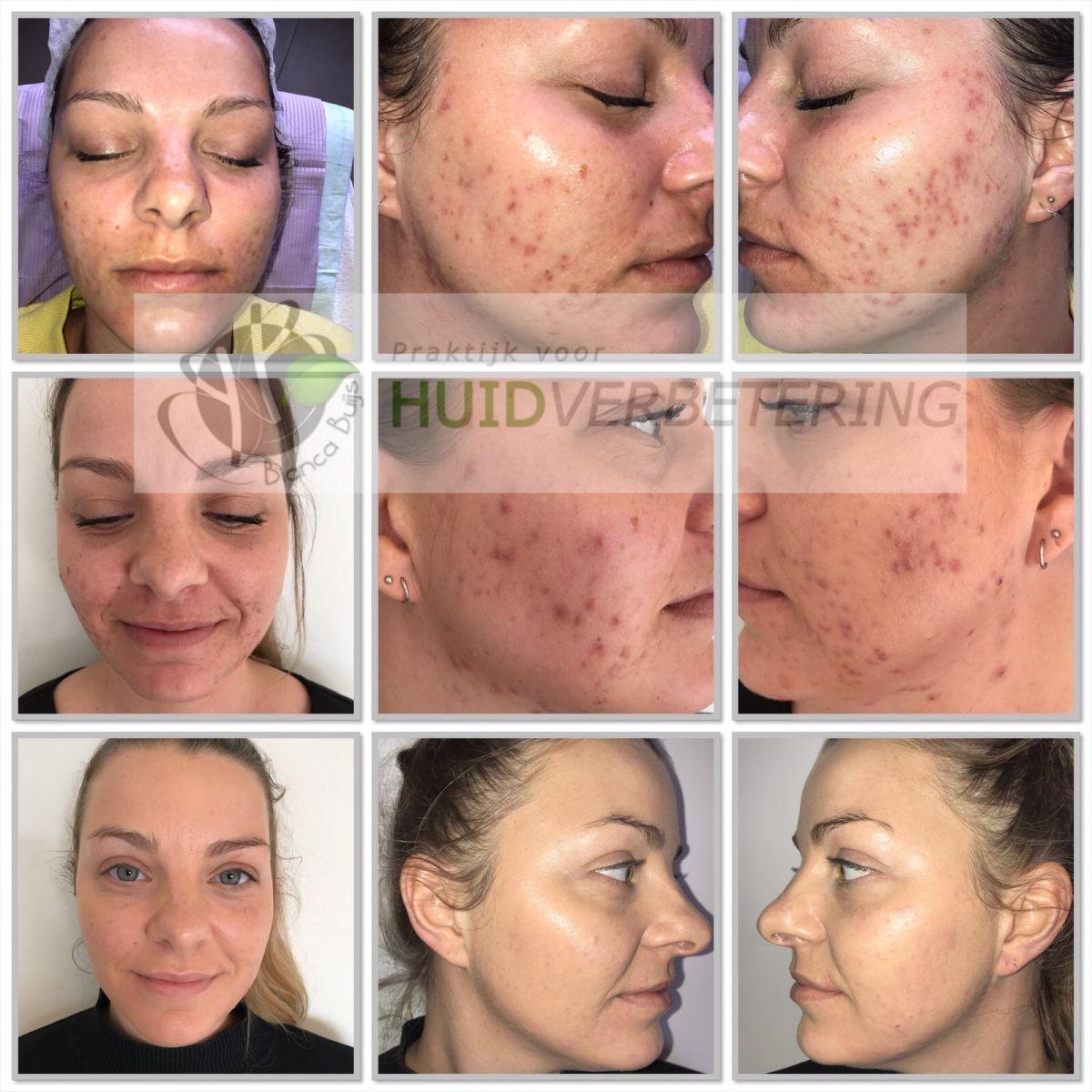 Voor en na foto acne behandeling