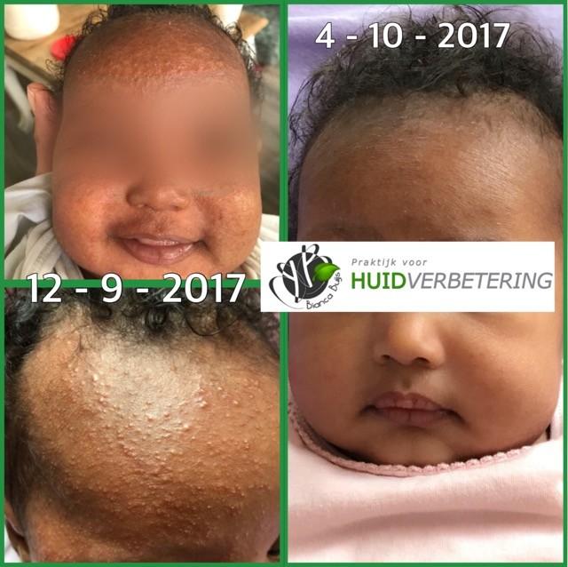 Voor en na foto baby met eczeem en baby acne