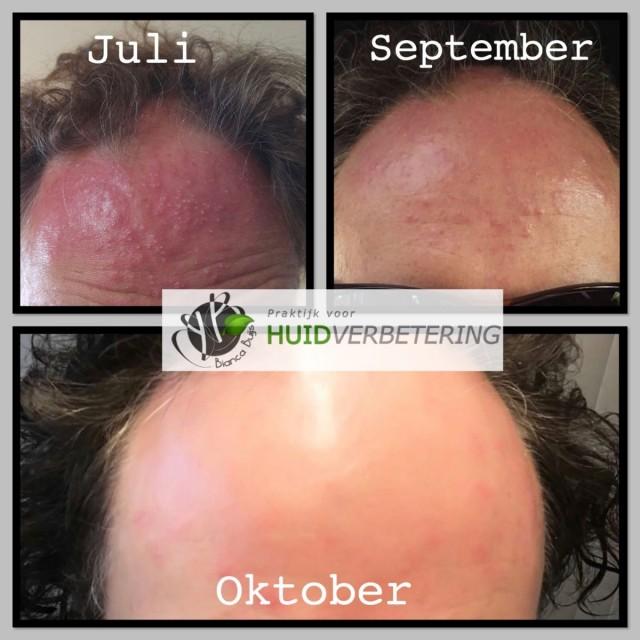 Voor en na foto eczeem huidirritatie