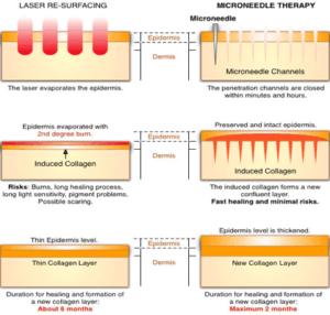 Voordeel Dermapen t.o.v. Laser