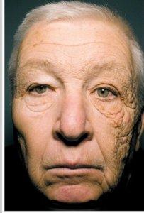 Vroegtijdige huidveroudering door de zon