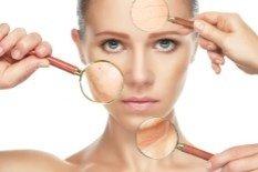 acne bedriegers
