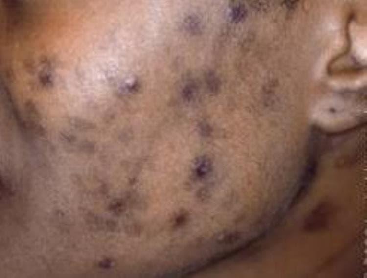 bruine littekens van puisten